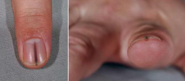 splitter unter fingernagel
